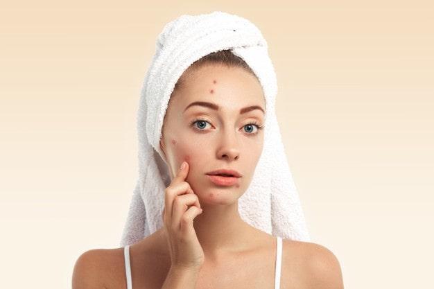 Reducing Acne